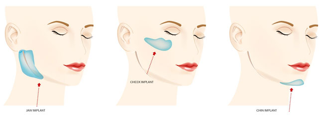 facial-implants-jaw-implants-check-implants